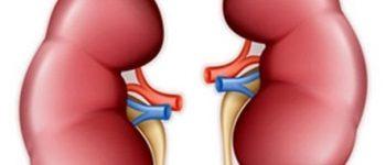 درمان نارسایی کلیه با سلولهای بنیادی عاری از عوارض جانبی است